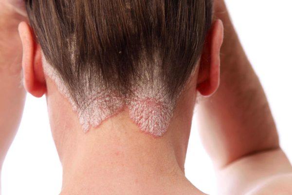 Псориаз на голове лечение и Псориаз волосистой части головы лечение.
