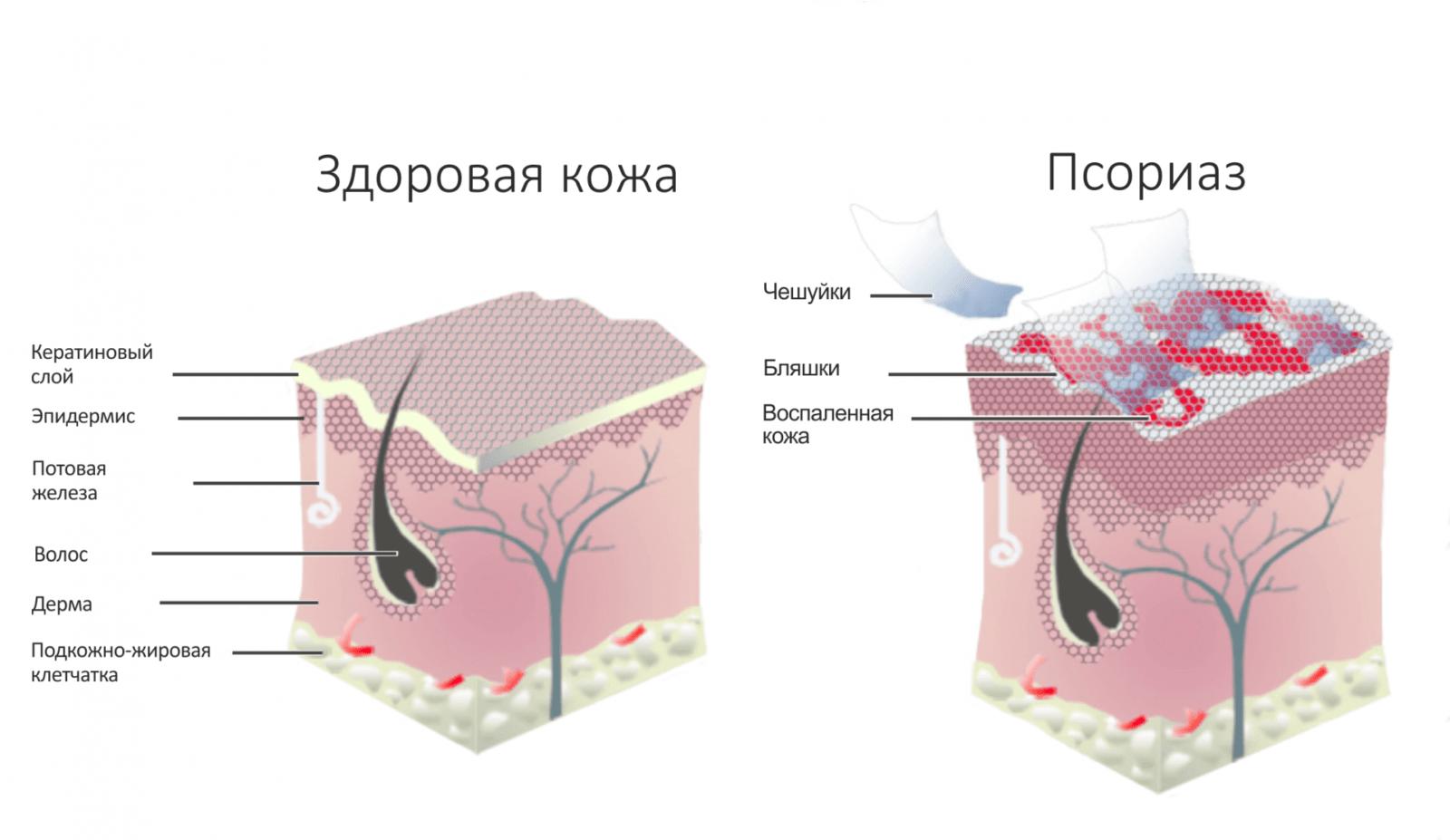 Псориаз. Симптомы причины и лечение псориаза