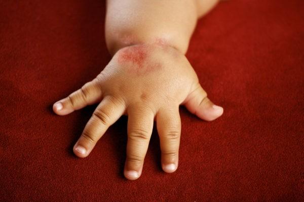 Лечение атопического дерматита ультрафиолетом