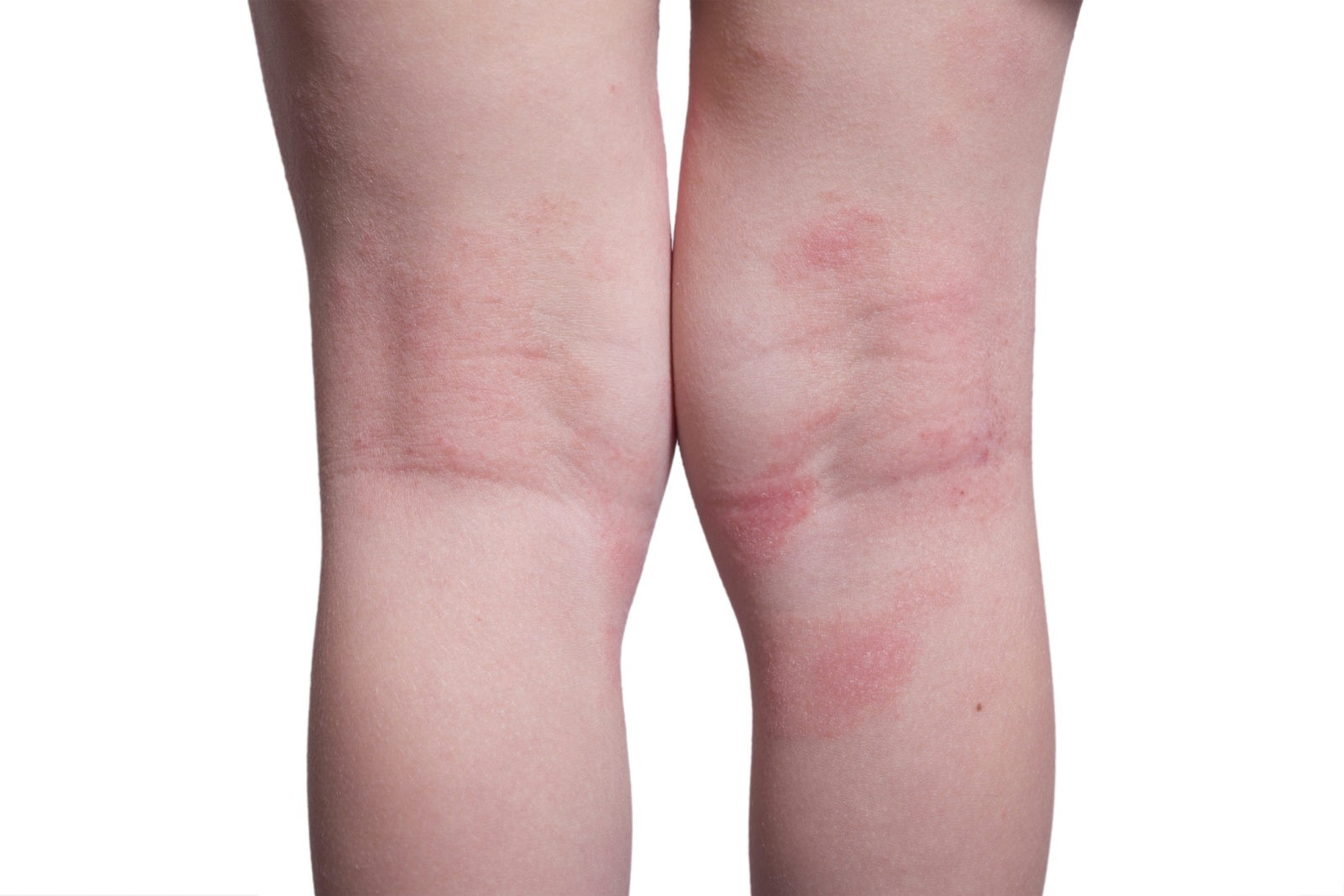 1 guidance atopic eczema in under 12s diagnosis and - 900×600