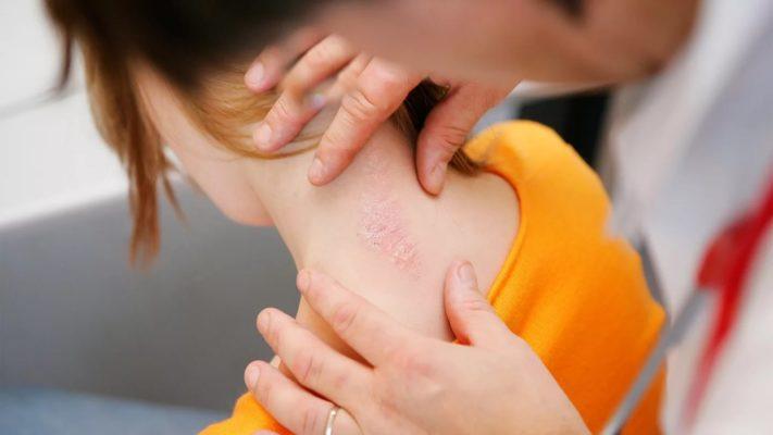Лечение псориаза в домашних условиях | Магазин Vitimed