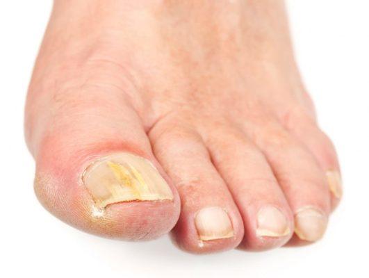 Как бороться с псориазом на ногтях
