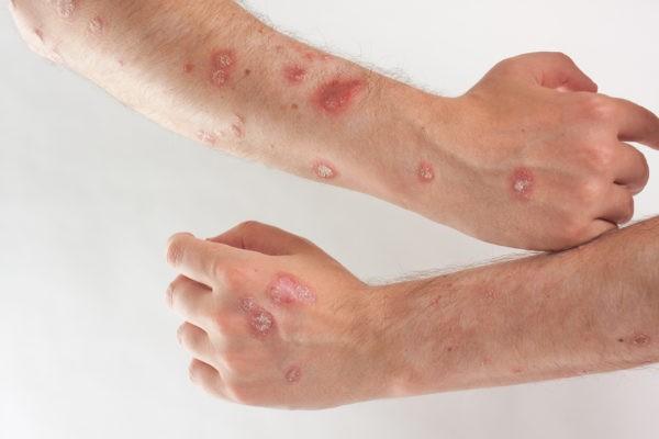 Стадии псориаза и его лечение | Магазин Vitimed