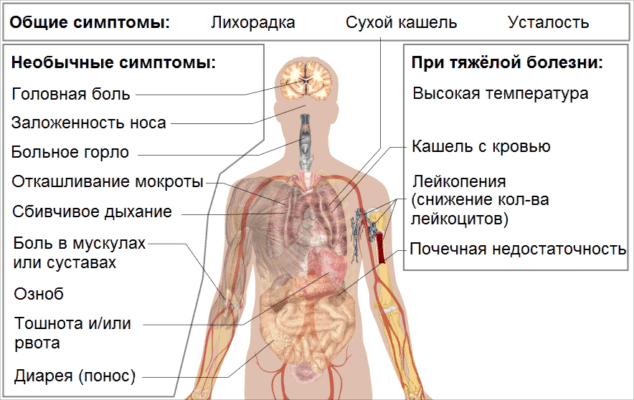 Коронавирус COVID-19 и витилиго