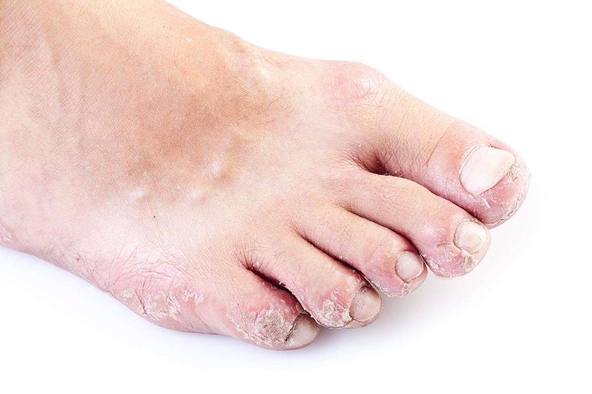 Псориаз на пальца и ногтях ног
