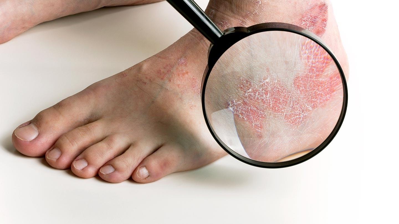 Причины появления псориаза на стопах