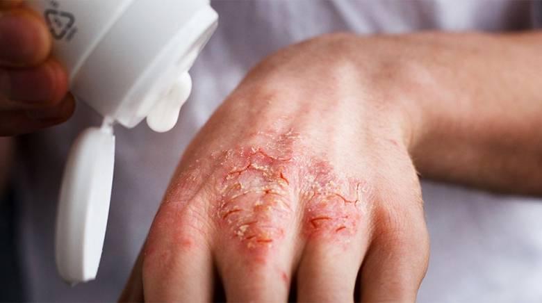 трещины на руках при псориазе