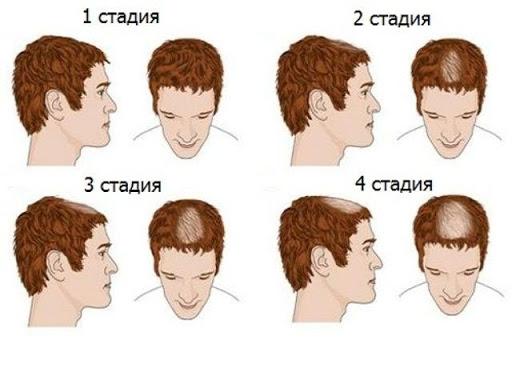 Алопеция у мужчин, стадии