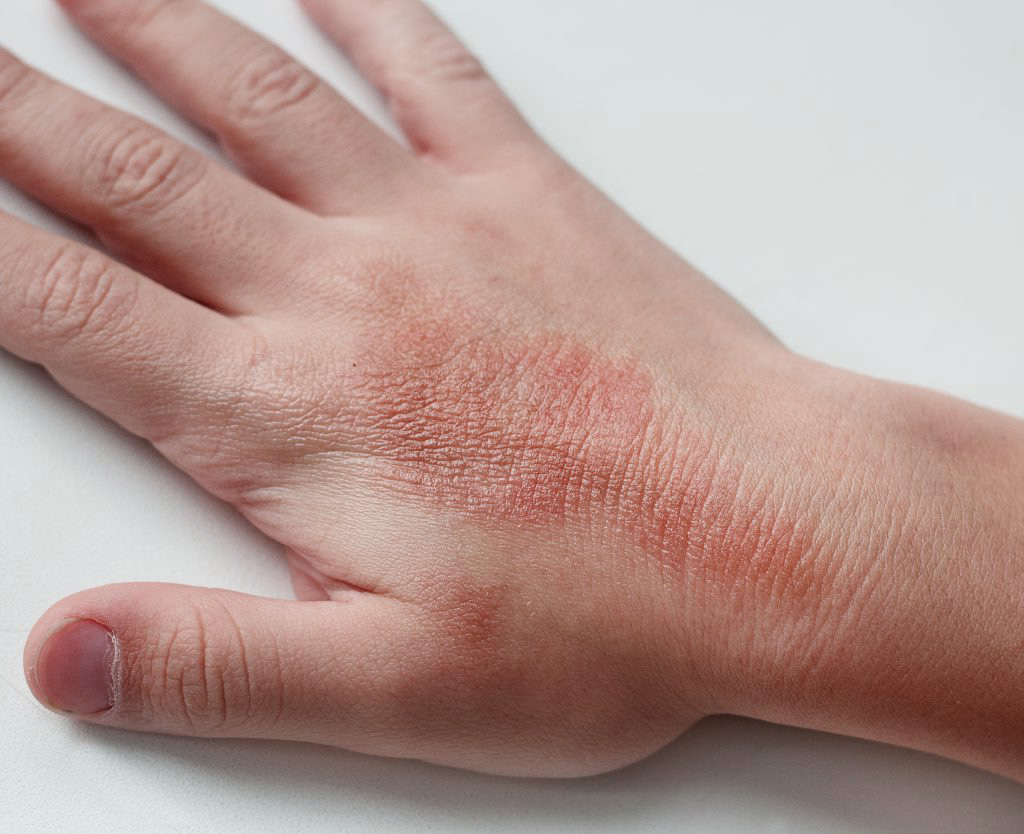 The dermatitis group includes inflammatory skin diseases