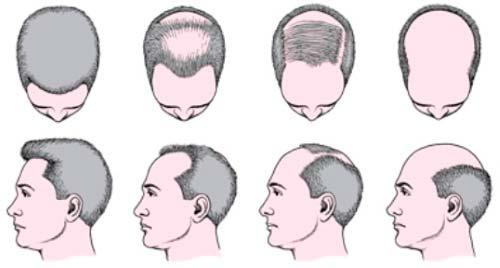 Лечение адрогенной алопеции у мужчин