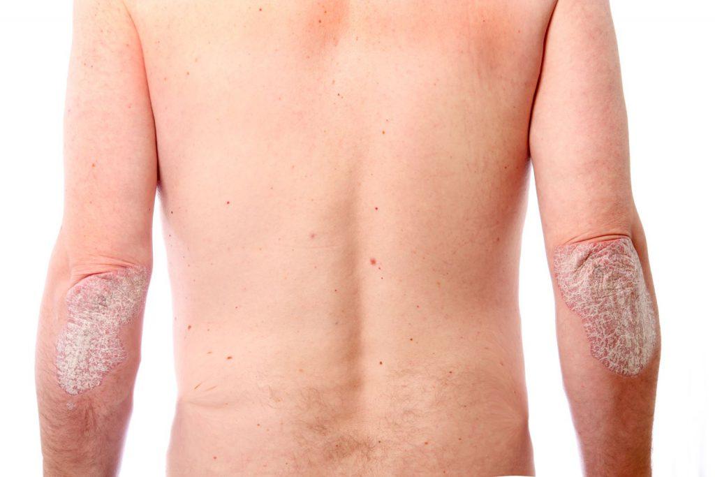 Симптомы псориаза на локтях