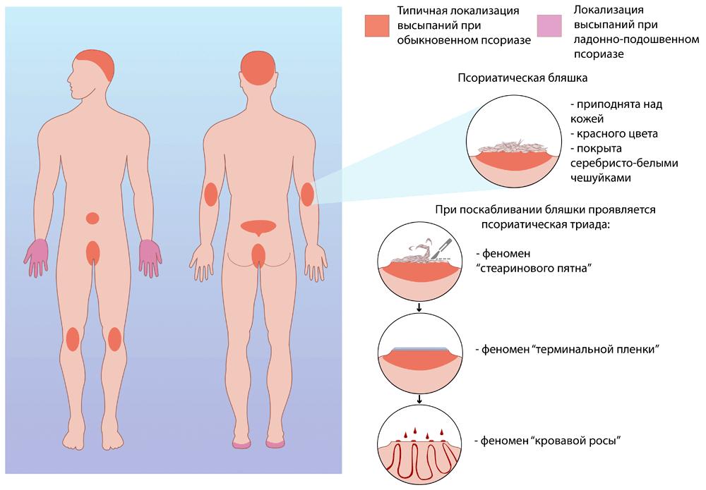 Псориаз половых органов: чем лечить